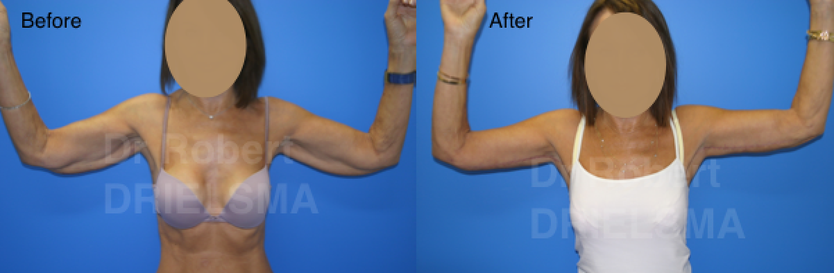 Arm lift Sydney before and after
