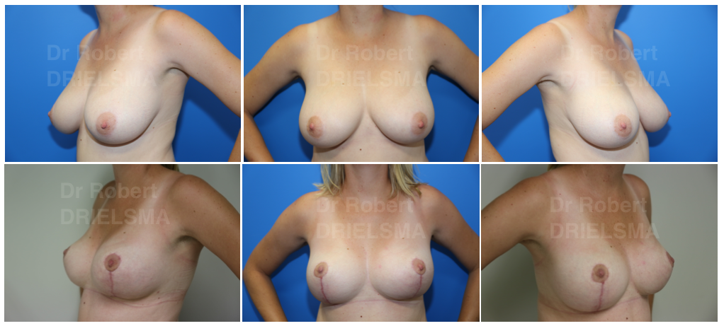 Breast Reduction Sydney