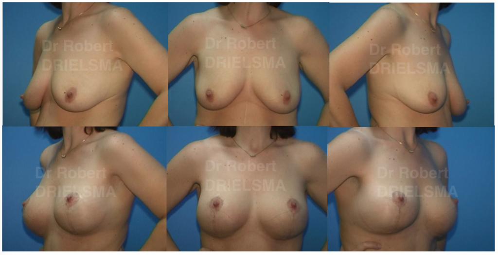 Leading Breast Lift with Implants Surgery in Sydney