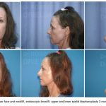 Facelift Surgery Sydney