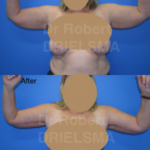 Arm Lift : Brachioplasty Sydney
