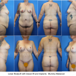 BodyLift Mummy Makeover