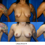 Breast Lift Sydney Dr Drielsma