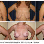 Breast-lift-with-implants-Sydney-c