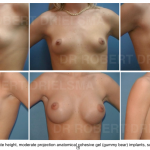 best Breast Augmentation surgeon sydney