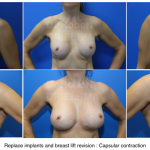 Change breast implants Dr Drielsma