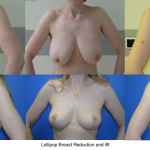 Lejour Vertical Breast lift