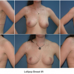 Lollipop Breast Lift Dr Drielsma Sydney