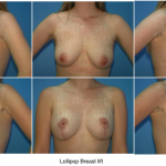 Lollipop Breast Lift Sydney