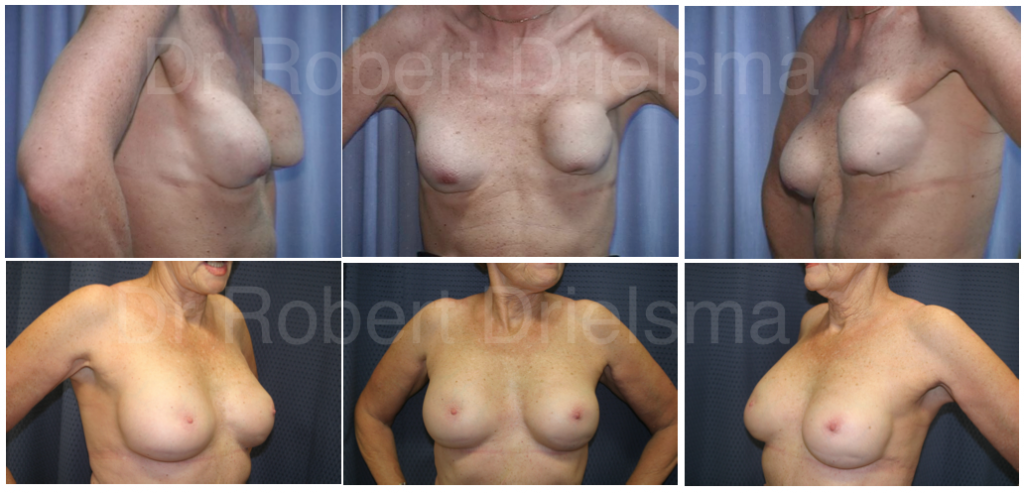 removal and replacement of breast implants