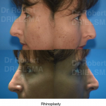 Rhinoplasty Nose Job Dr Drielsma