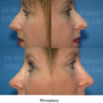 Rhinoplasty Nose Job Sydney