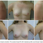 Tuberous Breast Deformity Before and After Photos