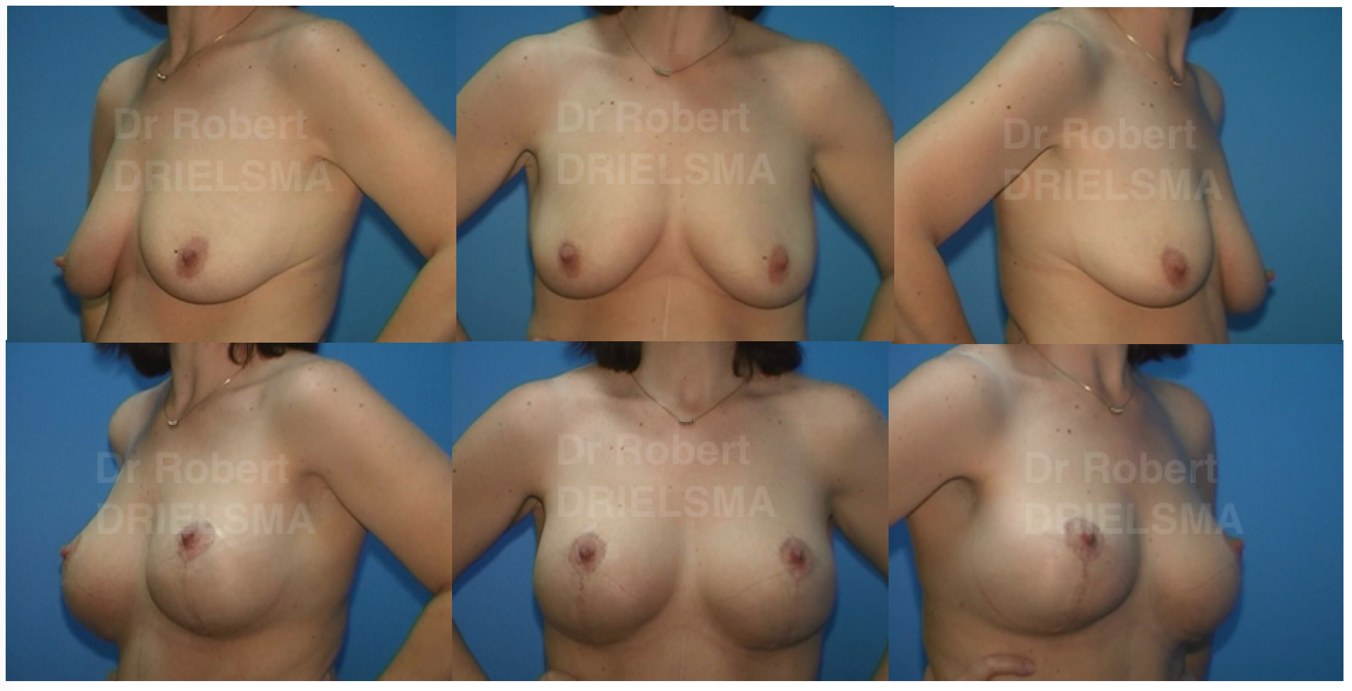 Breast Lift Sydney