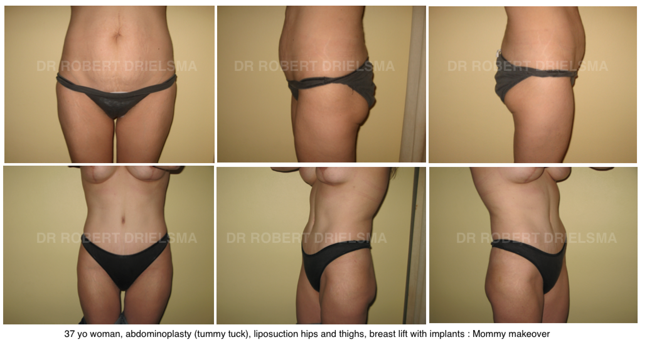 RealSelf - Real Reviews of Cosmetic Surgery - Find a Real self tummy tuck photos