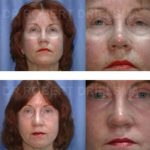 Laser Resurfacing Before & After