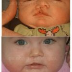 Cleft Lip and Palate Before & After