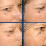 Cheek Skin Cancer Before & After