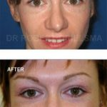 Eye Lift Surgery Before and After