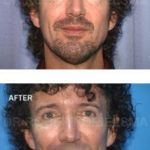 Cheek Implants Before & After