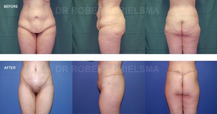 Body Lift Surgery Sydney Dr Robert Drielsma
