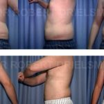 Liposuction/Liposculpture Before & After