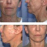 Facelift Surgery Before and After