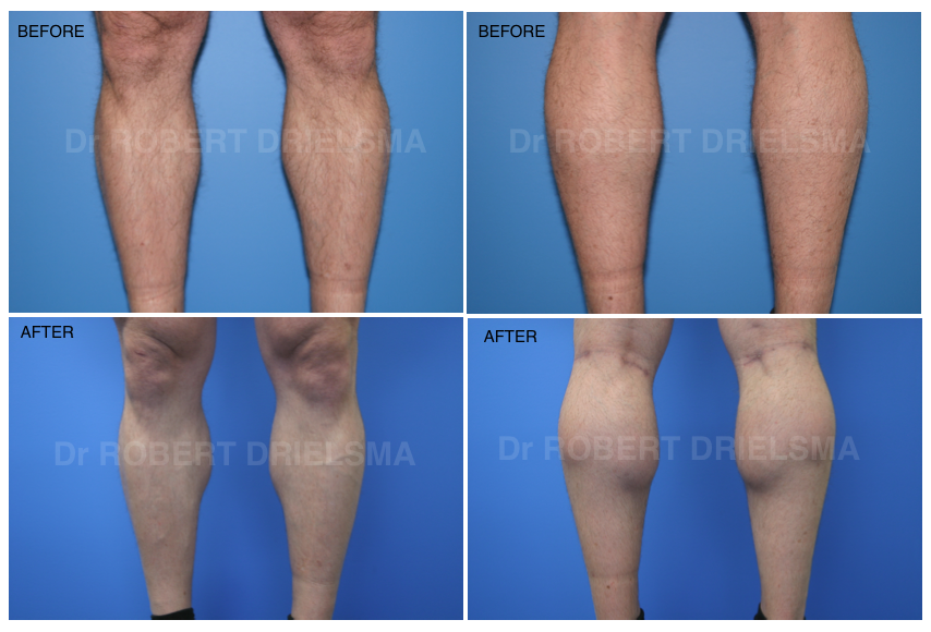Calf Implants Before & After