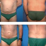 Liposuction For Men Before & After