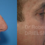 Male rhinoplasty before and after photos