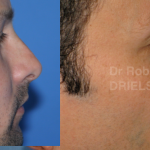rhinoplasty for men before and after photos