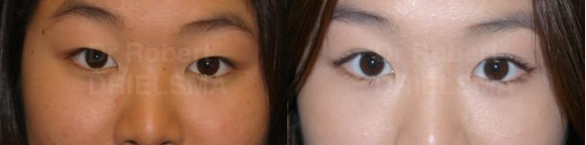 Asian Eyelift SurgeryBlepharoplasty Dr. Robert Drielsma Sydney