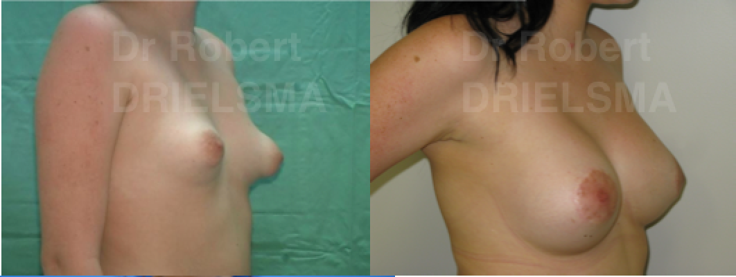 Tuberous Breast Deformity Correction Before and After
