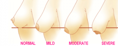 sagging breasts grade