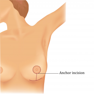 Types of Breast Lift Techniques