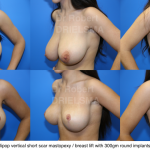 Breastlift with implants