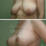 Lollipop-Breast-Reduction
