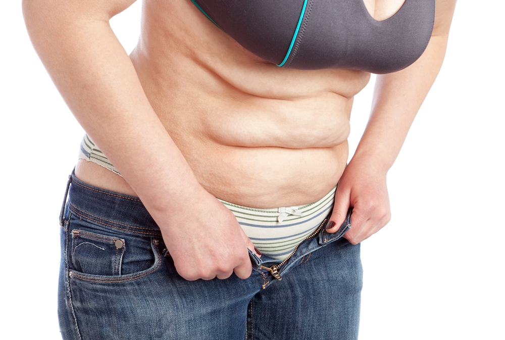 Top 9 Reasons For A Tummy Tuck After Weight Loss | Dr Drielsma