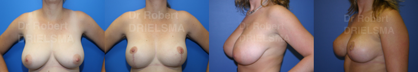 Breast Reduction Sydney Before and After
