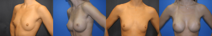 breast augmentation sydney before and after