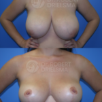 Lollipop Breast-Reduction