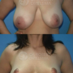 Lollipop Breast Reduction-Lift