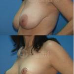 Lollipop Breast Reduction-Lift
