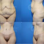 BodyLift surgery