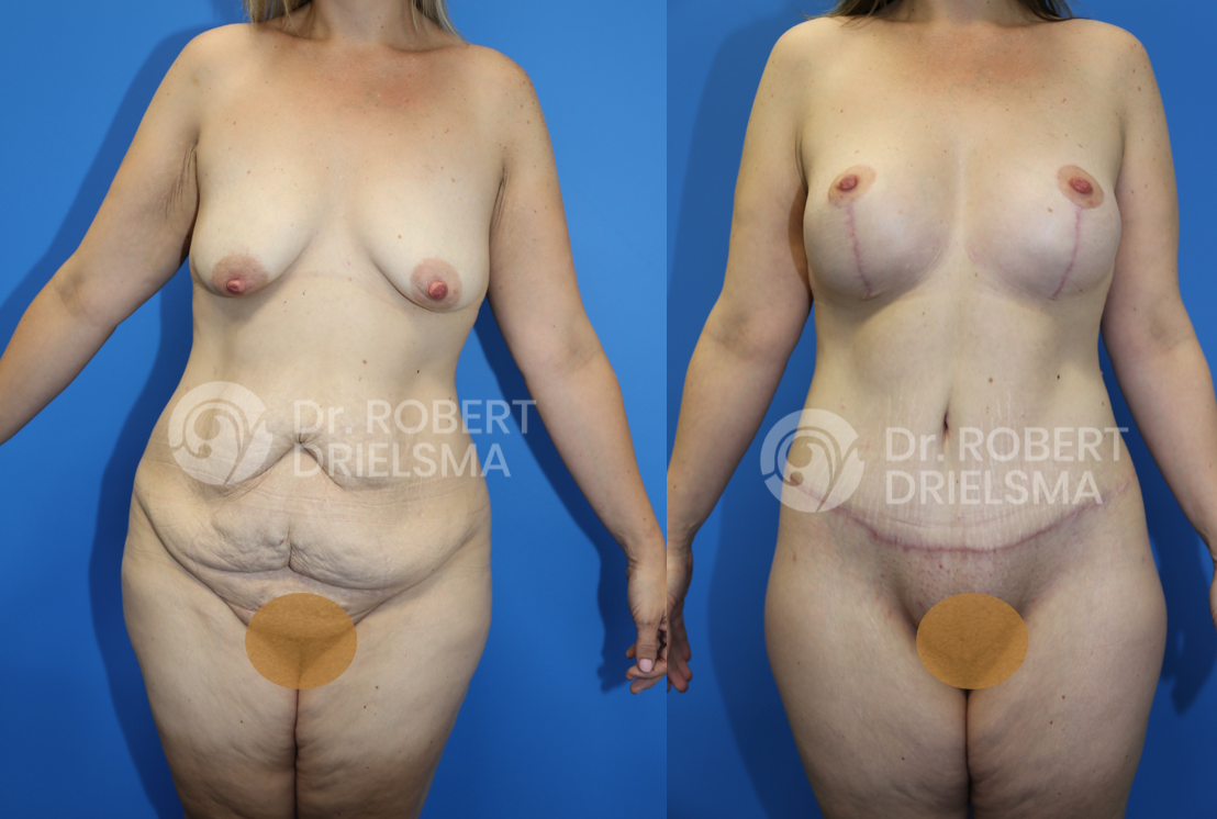 Body Lift Sydney Before and After
