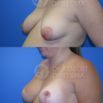 Breast Reduction/Lift with implants