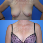Lollipop Breast Lift with implants