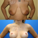 Breast Reduction / Lift with Implants