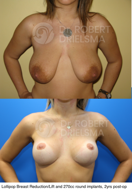 Risks of Breast Reduction Surgery