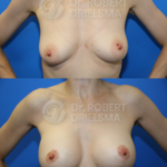 Lollipop BreastLift with implants